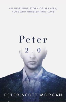 图片 Peter 2.0 The Human Cyborg